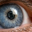 Expecting first trials for a fully implantable bionic eye