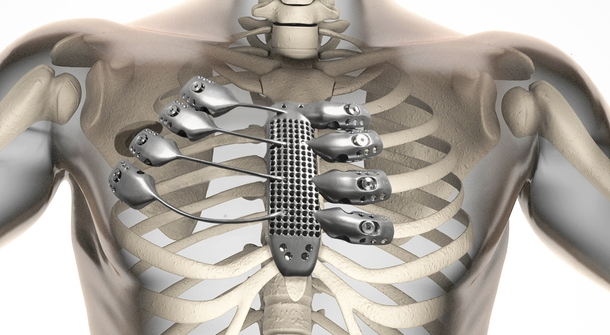 The world's first 3D-printed rib cage